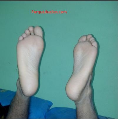 ¿Por qué duelen las plantas de los pies?
