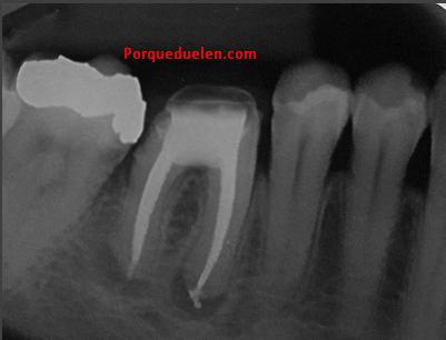 Porque Duele La Muela Con Endodoncia
