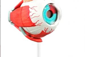 Porque Duele Los Globos Oculares