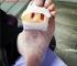 ¿Porque Duelen Y Se Hinchan Los Pies Después De Una Operación? Los tobillos y las piernas son sitios comunes de hinchazón debido al efecto de la gravedad en los fluidos de su cuerpo. Sin embargo, la retención de líquidos no es la única causa de una hinchazón en el tobillo o la pierna. Las lesiones y la inflamación posterior también pueden causar retención de líquidos e hinchazón después de una cirugía Un tobillo o pierna hinchada puede hacer que la parte inferior de la pierna parezca más grande de lo normal. La hinchazón puede hacer que sea difícil caminar, puede ser doloroso y hacer que la piel se sienta apretada y estirada sobre su pierna. Si bien la condición no siempre es motivo de preocupación, conocer su causa puede ayudar a descartar un problema más serio. Causas de la hinchazón de los pies después de la cirugía Si permanece durante gran parte del día, puede desarrollar un tobillo o pierna hinchado. La edad avanzada también puede hacer que la hinchazón sea más probable. Un viaje largo o un viaje en automóvil pueden causar un ángulo, pierna o pie hinchados también. Ciertas afecciones médicas también pueden causar hinchazón en el tobillo o la pierna. Éstas incluyen:  tener sobrepeso  insuficiencia venosa  el embarazo  Artritis Reumatoide  coágulos de sangre en la pierna  insuficiencia cardíaca  insuficiencia renal  infección de la pierna  insuficiencia hepática  linfedema o hinchazón causada por un bloqueo en el sistema linfático  cirugía previa, como cirugía de la pelvis, la pierna, el tobillo o el pie  Tomar ciertos medicamentos también puede causar hinchazón en el tobillo o la pierna. Éstas incluyen:  antidepresivos, incluidos fenelzina, nortriptilina y amitriptilina  bloqueadores de los canales de calcio utilizados para tratar la presión arterial alta, incluyendo nifedipina, amlodipina y verapamilo  medicamentos hormonales, como píldoras anticonceptivas, estrógeno o testosterona  esteroides La inflamación debido a una lesión aguda o crónica también puede ca