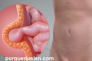 como aliviar el dolor de hernia inguinal